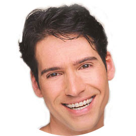 Man smiling with tooth coloured ceramic braces