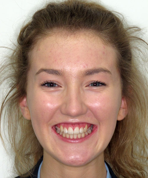 Charlotte - After treatment at Sunlight Orthodontics
