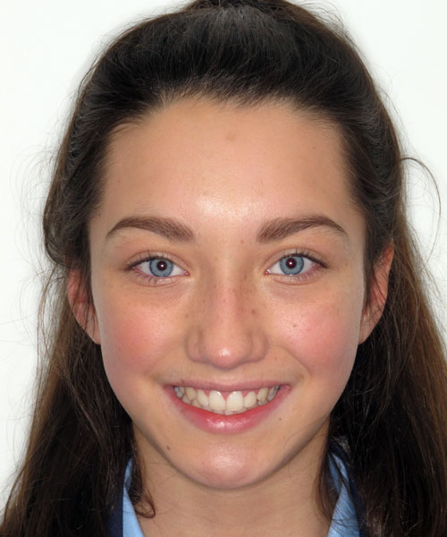 Chloe - After treatment at Sunlight Orthodontics