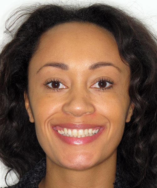 Jennifer - After treatment at Sunlight Orthodontics