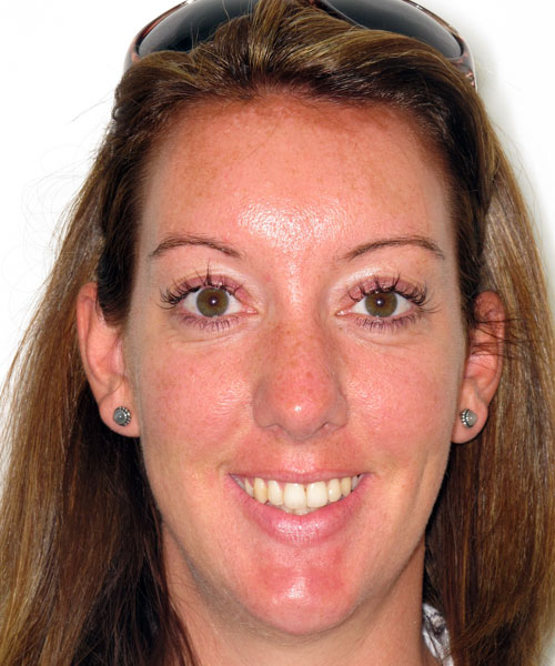 Nicola - After treatment at Sunlight Orthodontics