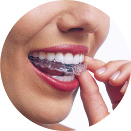 Woman putting in Invisalign invisible brace