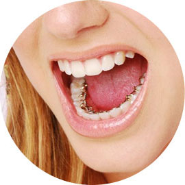 Girl opening her mouth to show lingual braces