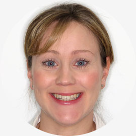 Anna, Wirral - Sunlight Orthodontics patient