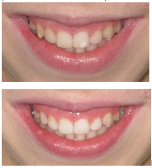 White & Brown Enamel spots: New treatment available!